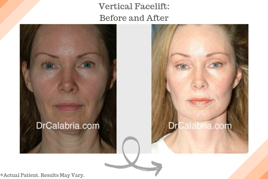 Vertical Facelift_ Before and After
