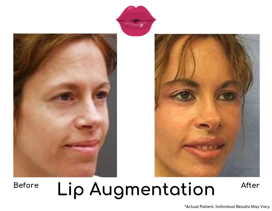 Lip Augmentation-img-blog