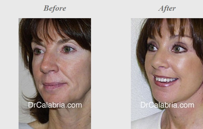 A woman before and after her rhinoplasty surgery.