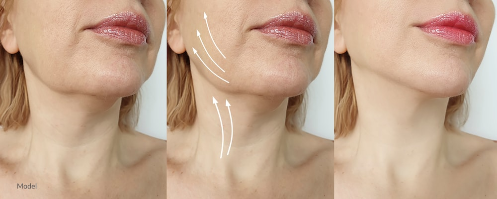 Facelift surgery provides transformative results. But are they permanent? Here's what you need to know about the facelift.