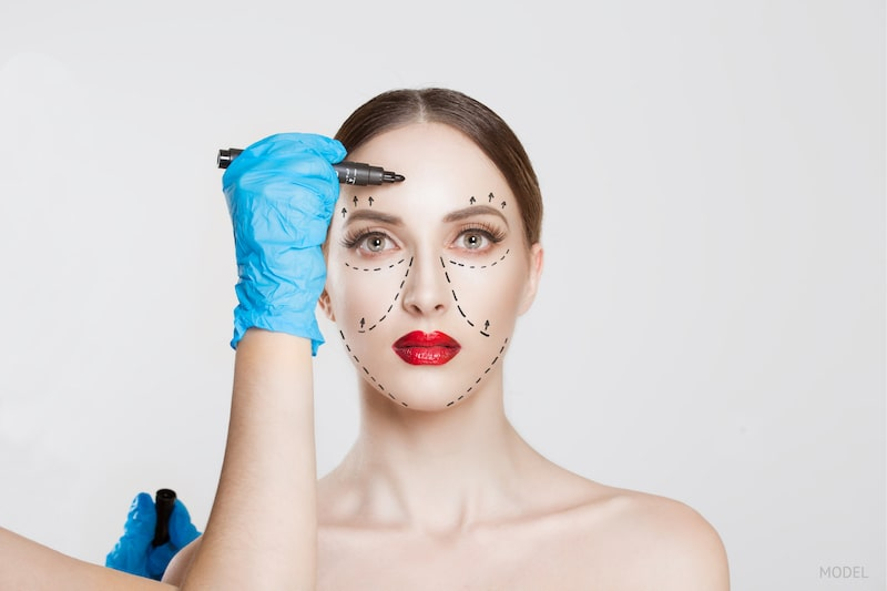 Woman with lines drawn on her bare face in preparation for a plastic surgery procedure.